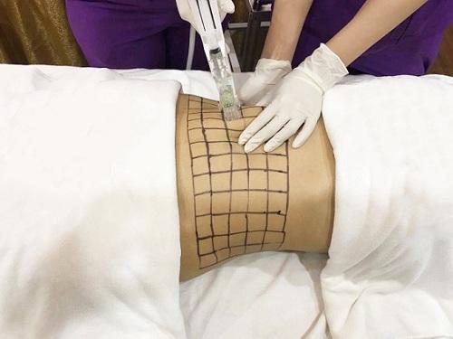 Công nghệ giảm béo Max Thin Lipo có an toàn không? Giá bao nhiêu